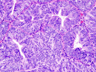 endometrial cancer histologic view